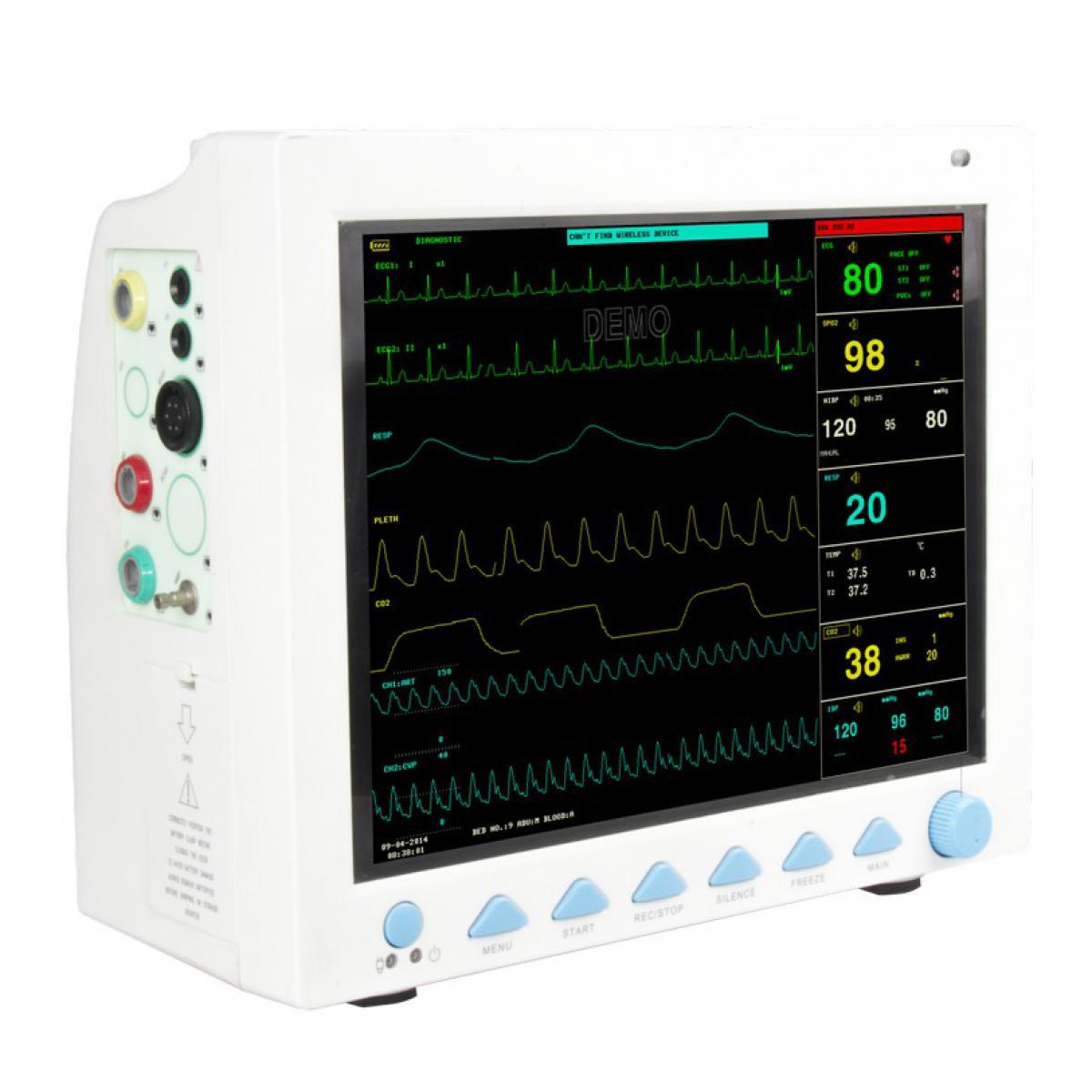 Монітор пацієнта поліфункціональний з неінвазивним вимірюванням гемодинаміки